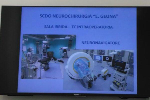 neurochirurgia: sala operatoria ibrida